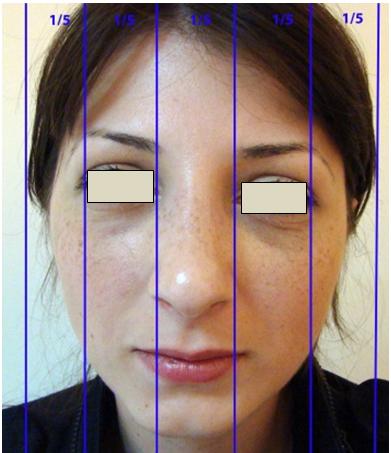 Figura 17. Zonele verticale ale feţei.