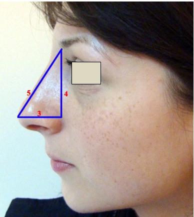 Figura 18. Proiecţia nasului la nivelul feţei.