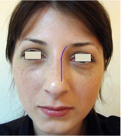 Figura 20. Linia dorsum nazal