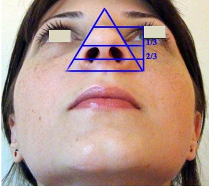 Figura 32. Baza nasului –Triunghi isoscel.