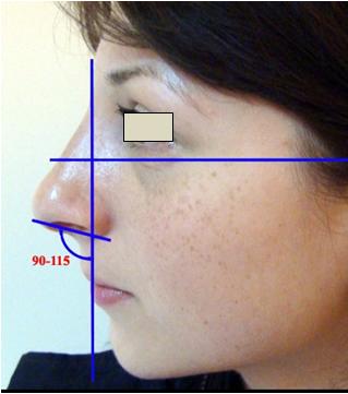 Figura 33. Poziţia bărbiei faţă de linia verticală coborâtă de la nasion perpendicular pe planul orizontal Frankfort (Gonzales Ulloa).