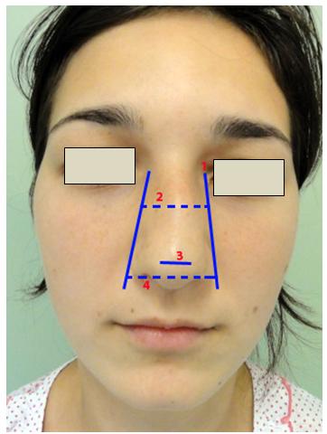 Figura 4. Dimensiunile piramidei nazale     1. LBN;      2. Lăţimea piramidei osoase (8);     3. Lăţimea lobulară nazală (9);      4. Lăţimea vârfului nazal (10).