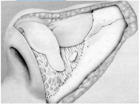 Figura 6. Straturile anatomice ale piramidei nazale     1. Plan superficial (ţesuturile moi)      2. Plan mijlociu (cadrul osteo-cartilaginos)