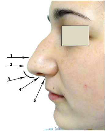 Figura 9. Structurile lobulului nazal                    (vedere laterală)     1. Supratip;      2. Tip;      3. Arc (baza alarelor);      4. Columela;      5. Baza columelei.