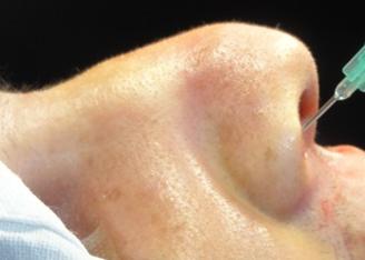 Figura 119. Puncte de anestezie locală endonazală.