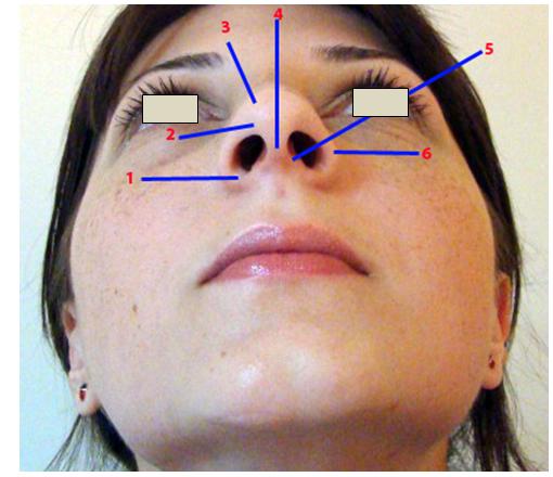 Figura 10. Structurile lobulului nazal (vedere bazală) 1.Baza alară; 2.Triunghiul moale; 3.Domul nazal; 4.Şanţul mediocolumelar; 5.Protuberanţa crus medial cartilaj alar; 6.Rama (marginea) alară.