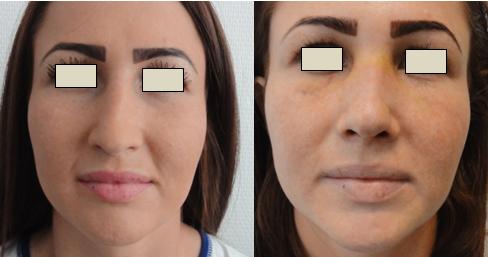 Figura 100. Vedere frontală – aspect pre şi postoperator.