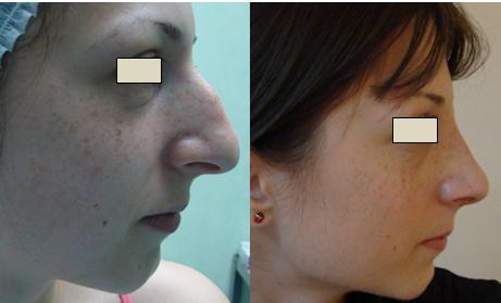 Figura 105. Vedere laterală dreapta – aspect pre şi postoperator.