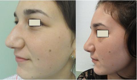 Figura 109. Vedere laterală stânga – aspect pre şi postoperator.