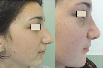 Figura 110. Vedere laterală dreapta – aspect pre şi postoperator.