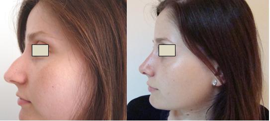 Figura 115. Vedere laterală stânga – aspect pre şi postoperator.