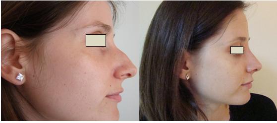 Figura 116. Vedere laterală dreapta – aspect pre şi postoperator