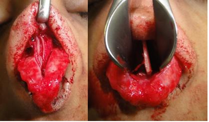 Figura 125. Chirurgia septului nazal.