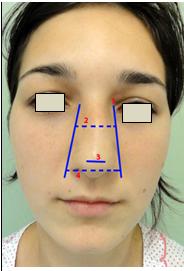Figura 133. Vedere frontală. 1.Linia bazală a nasului (NBL); 2.Lăţimea piramidei osoase; 3.Lăţimea lobulului; 4.Lăţimea bazei alare.