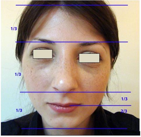 Figura 16. Zonele orizontale ale feţei.
