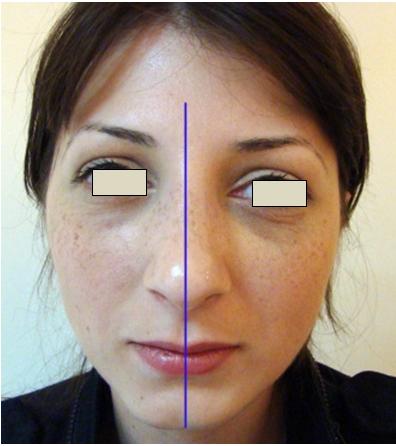 Figura 21. Linia mediană a feţei.