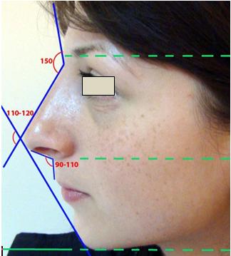 Figura 26. Examinarea de profil.