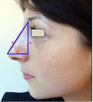 Figura 27. Proiecţia vârfului nazal.