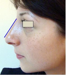Figura 29. Linia de proiecţie pentru dorsum nazal.
