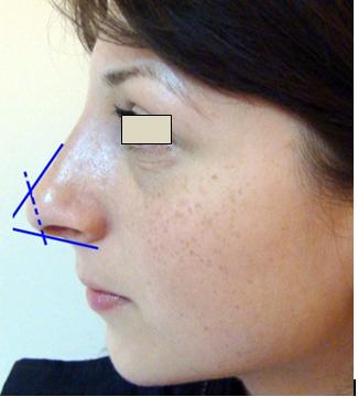Figura 31. Relaţia columelă - vârful nasului (dubla ruptură).
