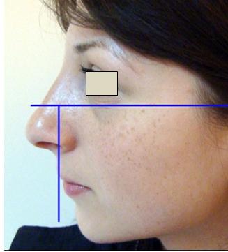 Figura 35. Relaţia bărbie-linia verticală vermilionul buzei inferioare