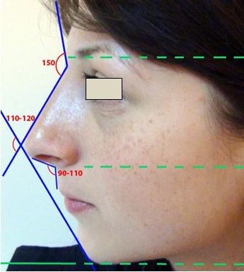 Figura 41. Unghiurile ideale nazo-faciale.