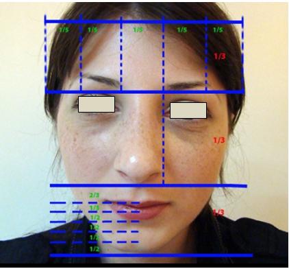 Figura 42. Zonele faciale.