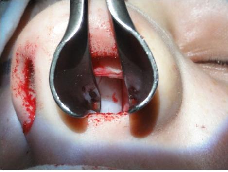 Figura 58. Expunerea tunelulului cartilaj septal / mucopericondru.