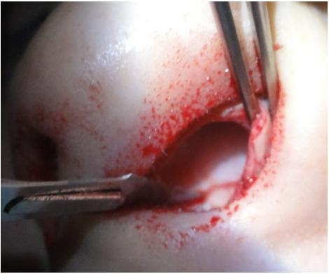 Figura 59. Incizia orizontală a crestei septale cartilaginoase.