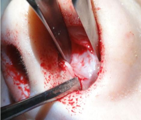 Figura 60. Decolarea contralaterală a crestei septale cartilaginoase.