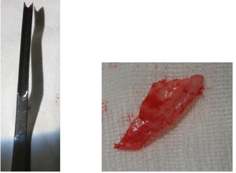 Figura 62. Dalta   Creasta cartilaginoasă excizată pentru creasta septală KILIAN-CLAUS