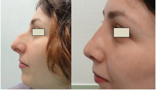 Figura 96. Vedere profil stânga – aspect pre şi postoperator.
