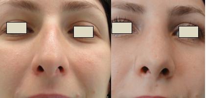 Figura 98. Vedere anterioară – aspect pre şi postoperator.