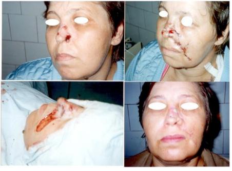 Caz clinic 5. Carcinom bazocelular. Defect mediu tegument și cartilaj. Corecția defectului: 1. Lambou nazolabial tip Nelaton 2. Grefa liberă cartilaj auricular.