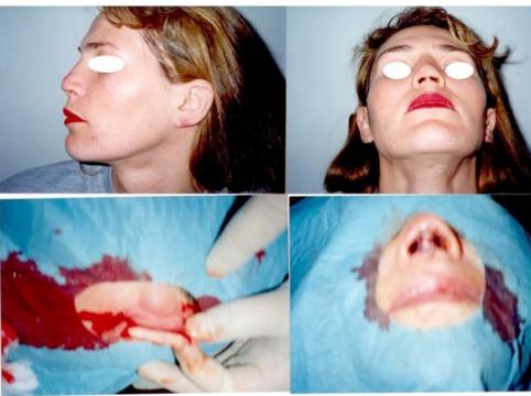 Caz Clinic 6. Caz complex cu reconstrucție cu cartilaj auricular a columelei.