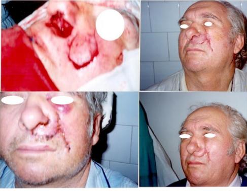 Caz Clinic 7. Caz complex cu reconstrucție aripa nazală.