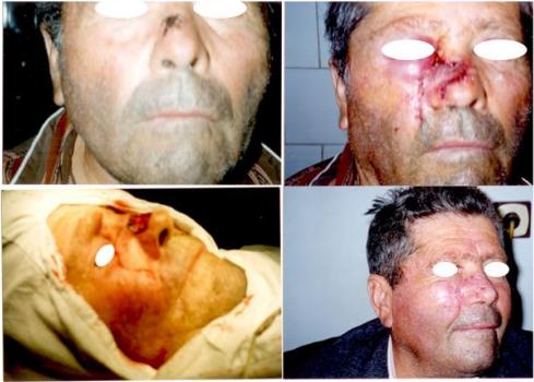Caz Clinic 2. Carcinom bazocelular. Defect cutanat dorsum nazal de marime medie. Corecția defectului prin lambou bilobat.