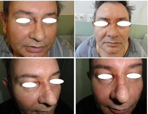 Caz Clinic 1. Carcinom bazocelular. Defect cutanat dorsum nas de marime mică. Aspect preoperator, postoperator și la câteva luni.