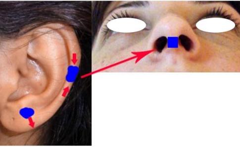 Figura 14. Grefa compozită auriculară și grefa liberă de piele preauriculară.