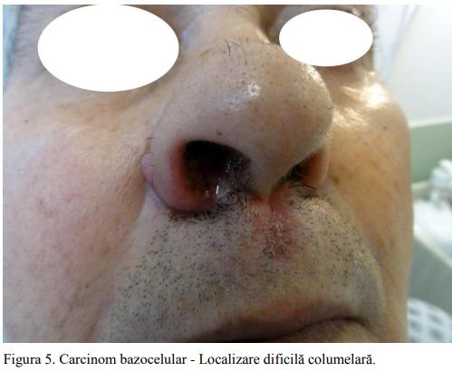 Figura 5. Carcinom bazocelular - Localizare dificilă columelară