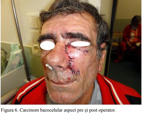 Figura 6. Carcinom bazocelular aspect pre și post operator.