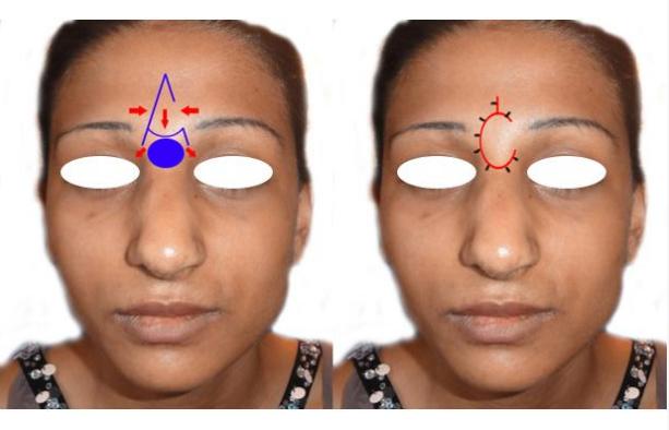 boli de cartilaj ale nasului